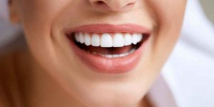 porcelain veneers brooklyn